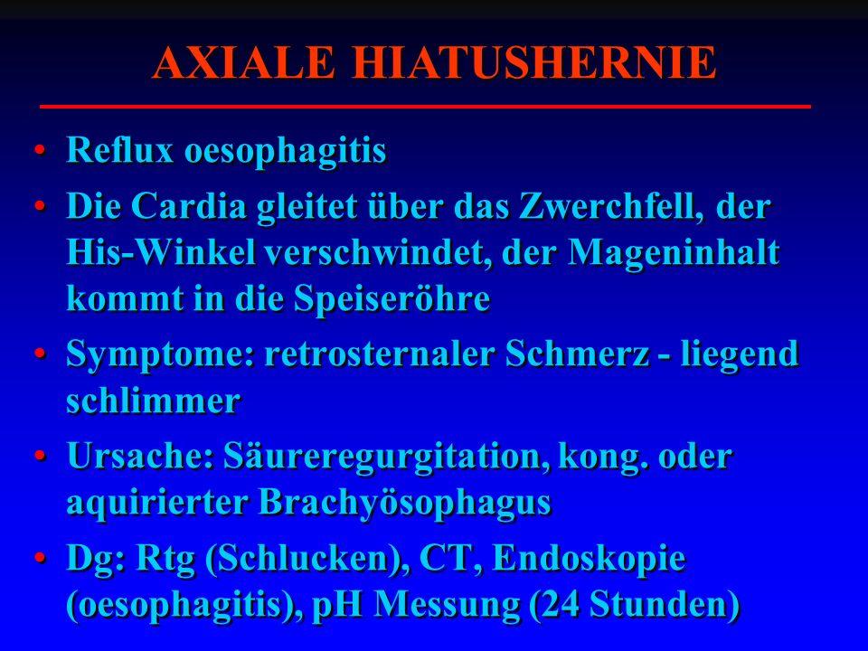 AXIALE HIATUSHERNIE Reflux oesophagitis