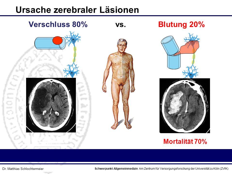 Ursache zerebraler Läsionen