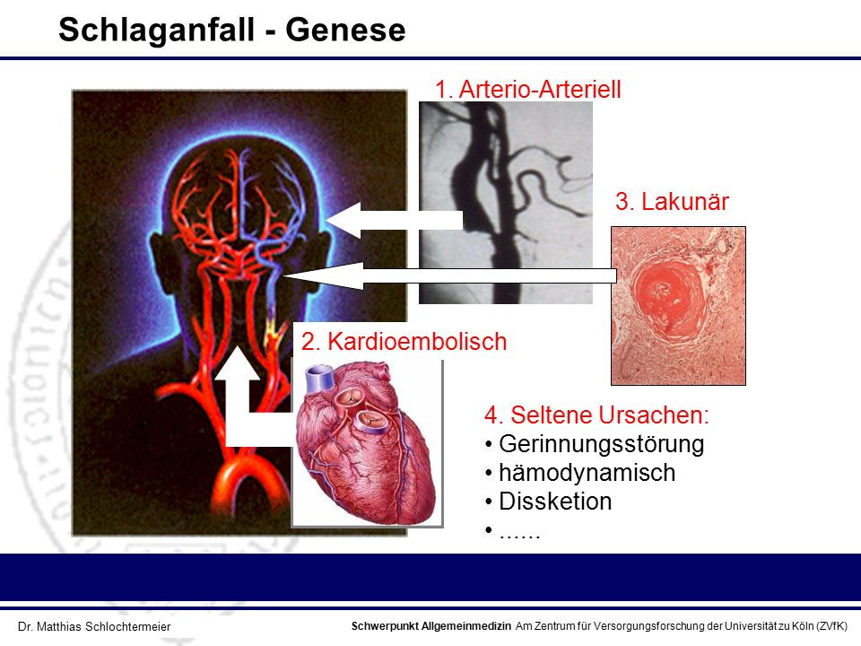 Schlaganfall - Genese 1. Arterio-Arteriell 3. Lakunär