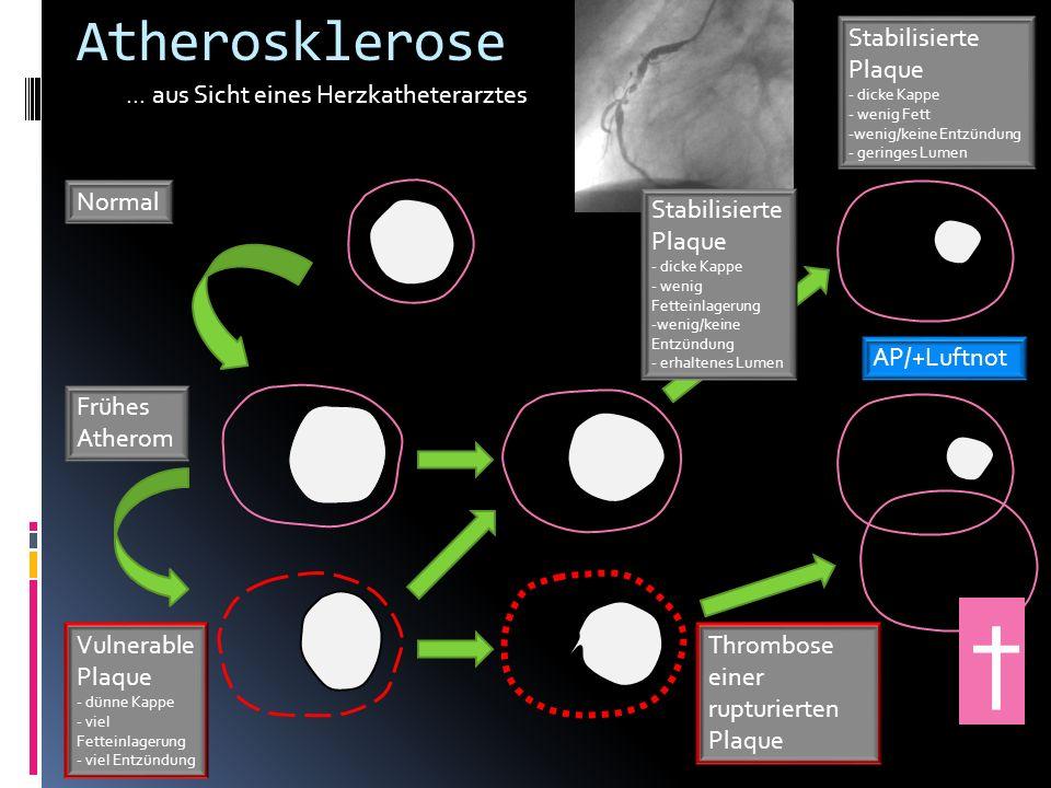 † Atherosklerose Stabilisierte Plaque