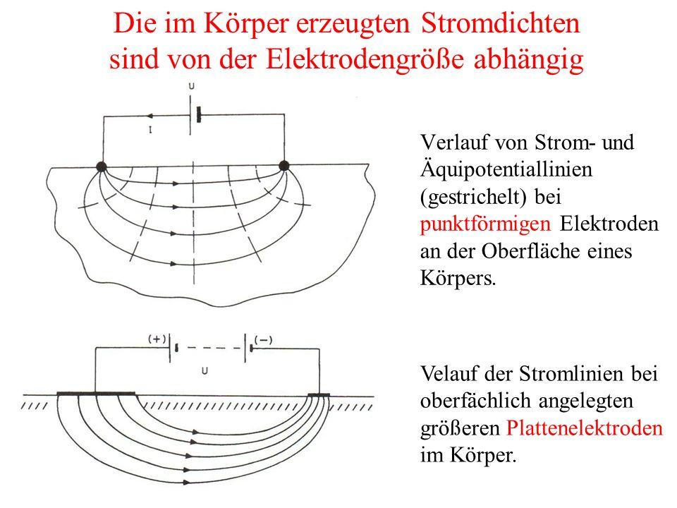 Die im Körper erzeugten Stromdichten sind von der Elektrodengröße abhängig