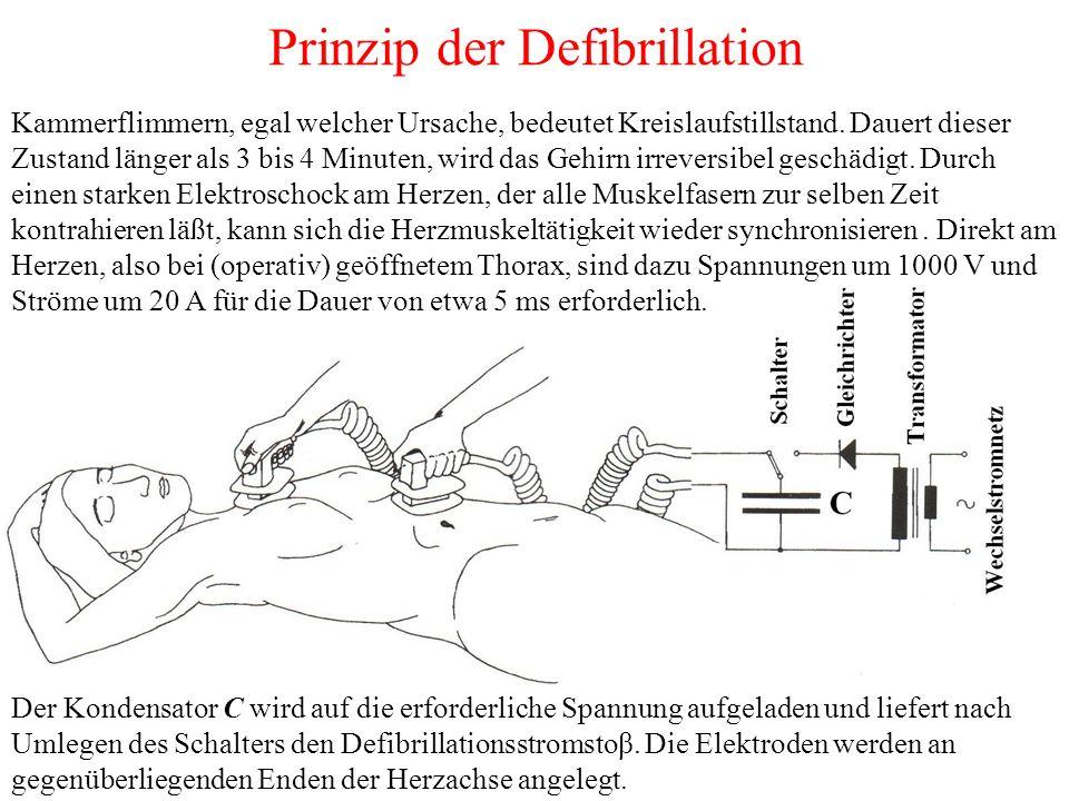 Prinzip der Defibrillation