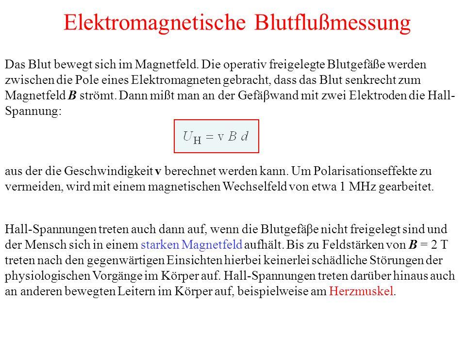 Elektromagnetische Blutflußmessung