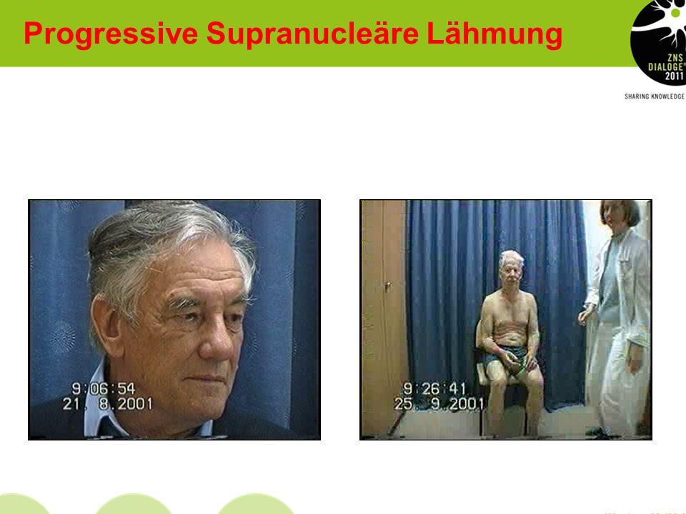 Progressive Supranucleäre Lähmung