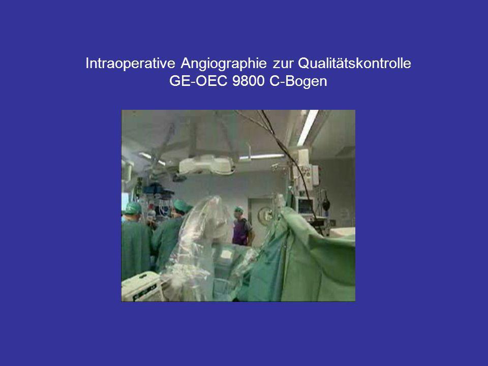 Intraoperative Angiographie zur Qualitätskontrolle GE-OEC 9800 C-Bogen