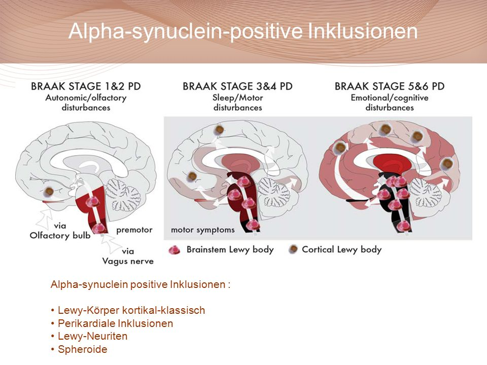Alpha-synuclein-positive Inklusionen