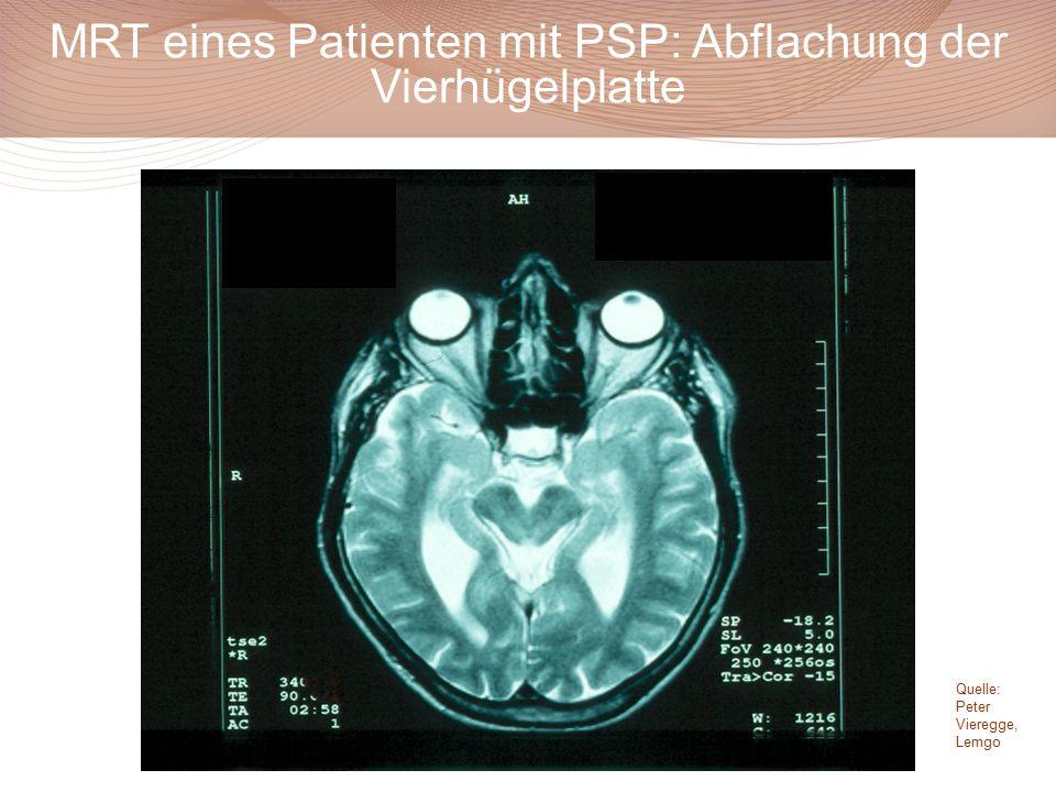 MRT eines Patienten mit PSP: Abflachung der Vierhügelplatte