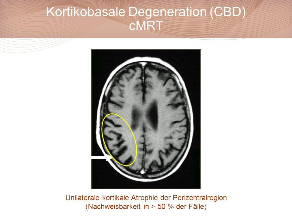 Kortikobasale Degeneration (CBD) cMRT
