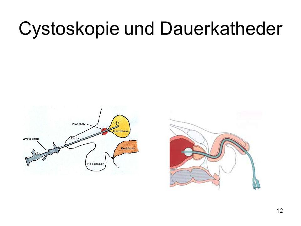 Cystoskopie und Dauerkatheder