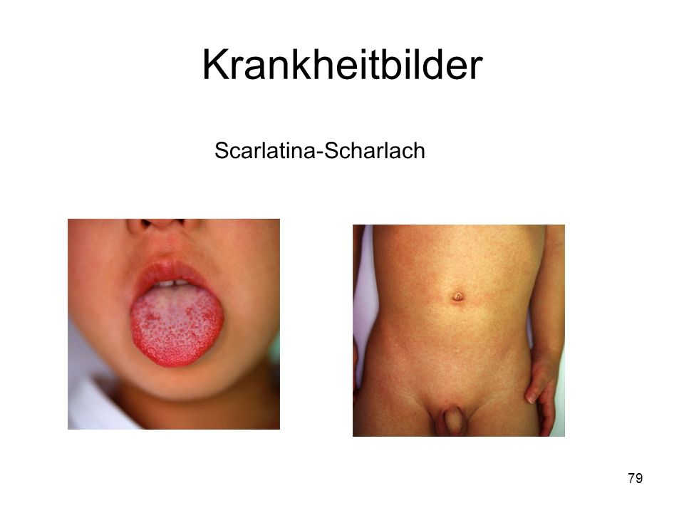 Krankheitbilder Scarlatina-Scharlach