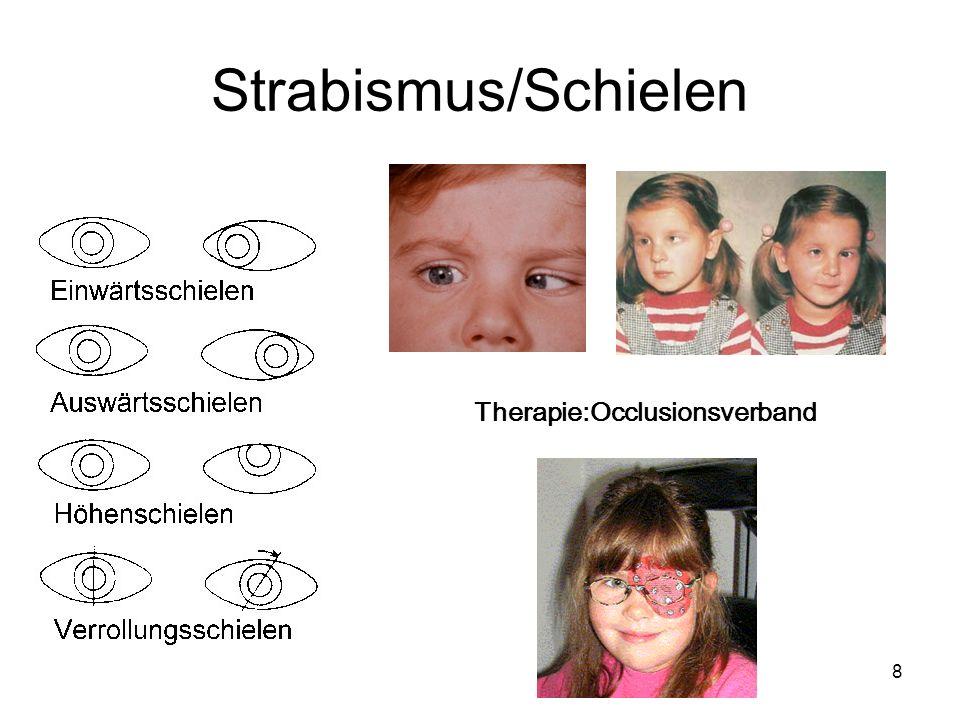Strabismus/Schielen Therapie:Occlusionsverband