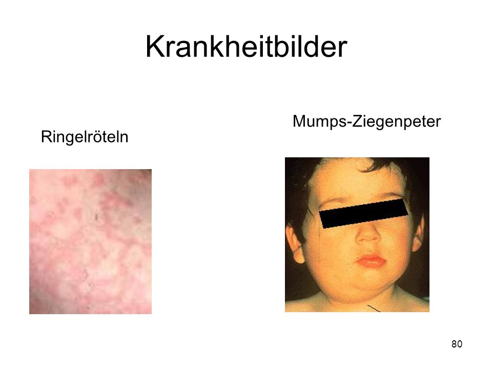 Krankheitbilder Mumps-Ziegenpeter Ringelröteln