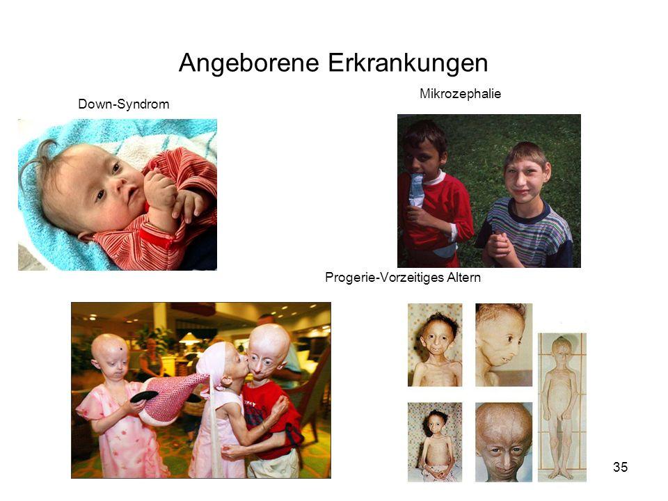 Angeborene Erkrankungen