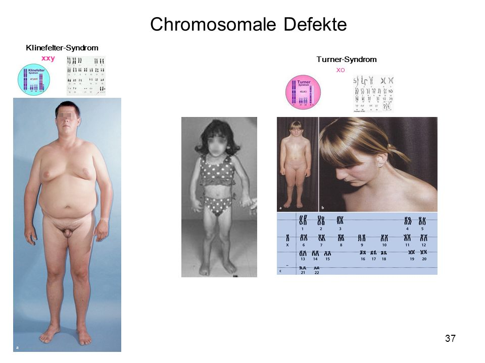 Chromosomale Defekte Klinefelter-Syndrom xxy Turner-Syndrom xo