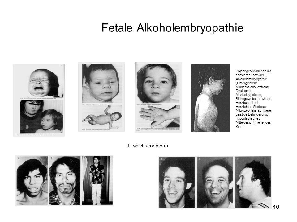 Fetale Alkoholembryopathie