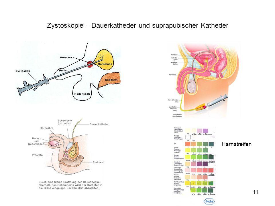 Zystoskopie – Dauerkatheder und suprapubischer Katheder