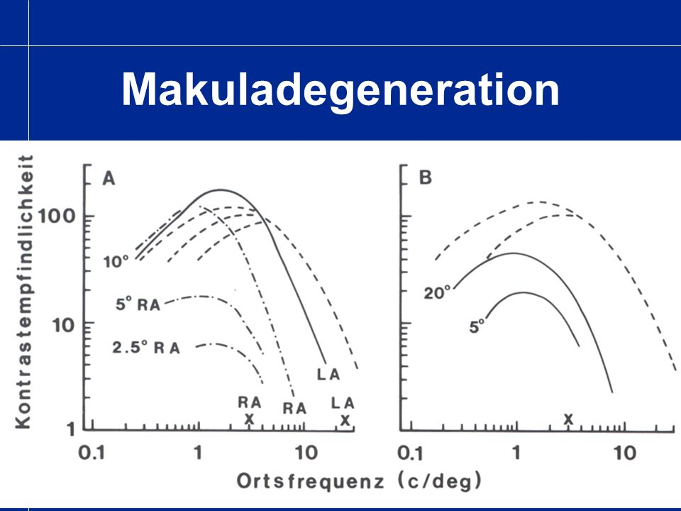 Makuladegeneration