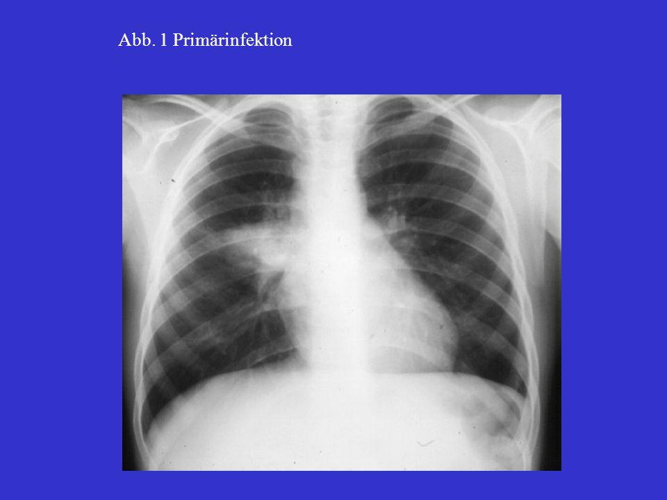 Abb. 1 Primärinfektion