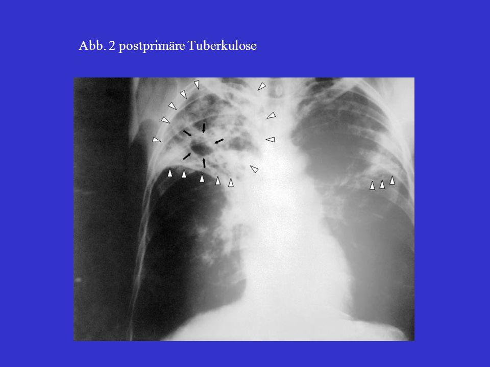 Abb. 2 postprimäre Tuberkulose