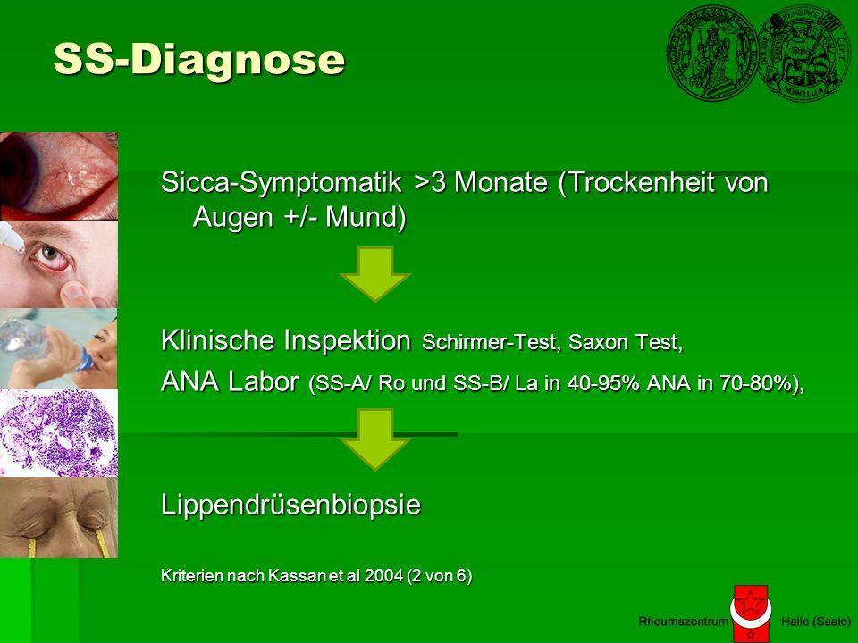 SS-Diagnose Sicca-Symptomatik >3 Monate (Trockenheit von Augen +/- Mund) Klinische Inspektion Schirmer-Test, Saxon Test,