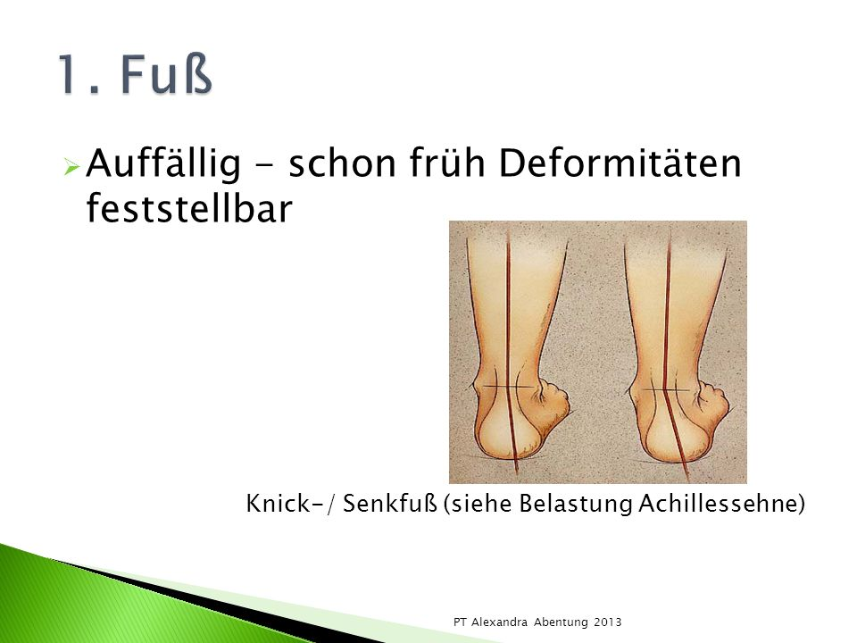 1. Fuß Auffällig - schon früh Deformitäten feststellbar