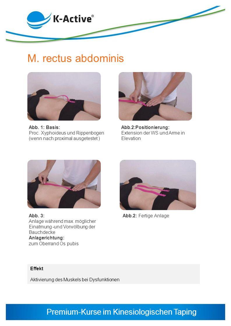 M. rectus abdominis Abb. 1: Basis: Proc. Xyphoideus und Rippenbogen (wenn nach proximal ausgetestet )