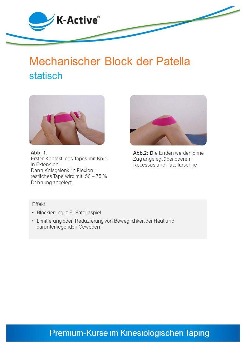 Mechanischer Block der Patella statisch