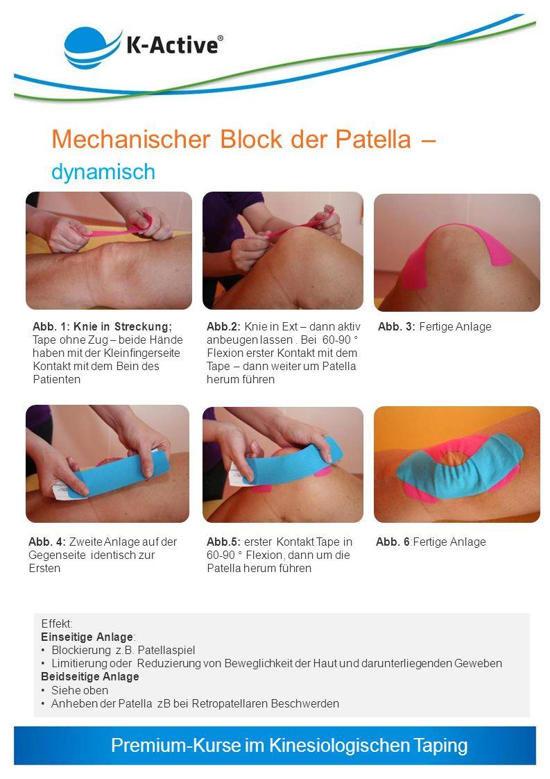 Mechanischer Block der Patella –