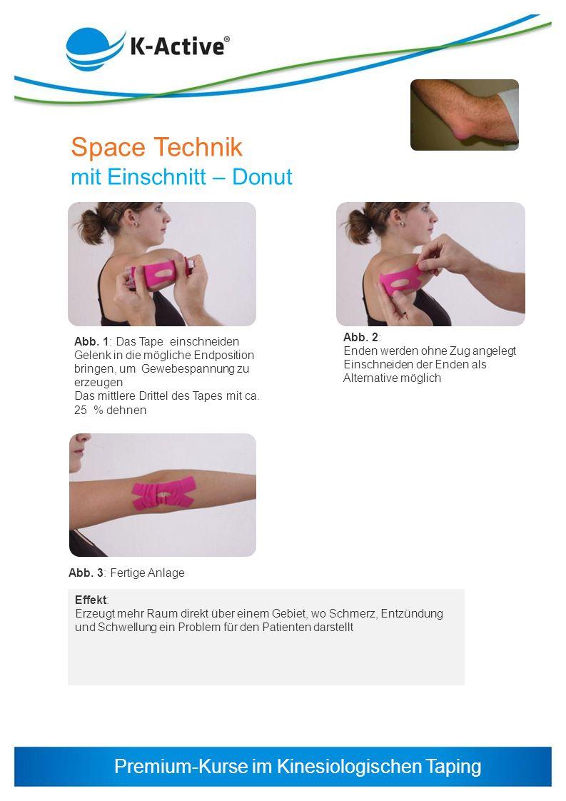 Space Technik mit Einschnitt – Donut Abb. 2: