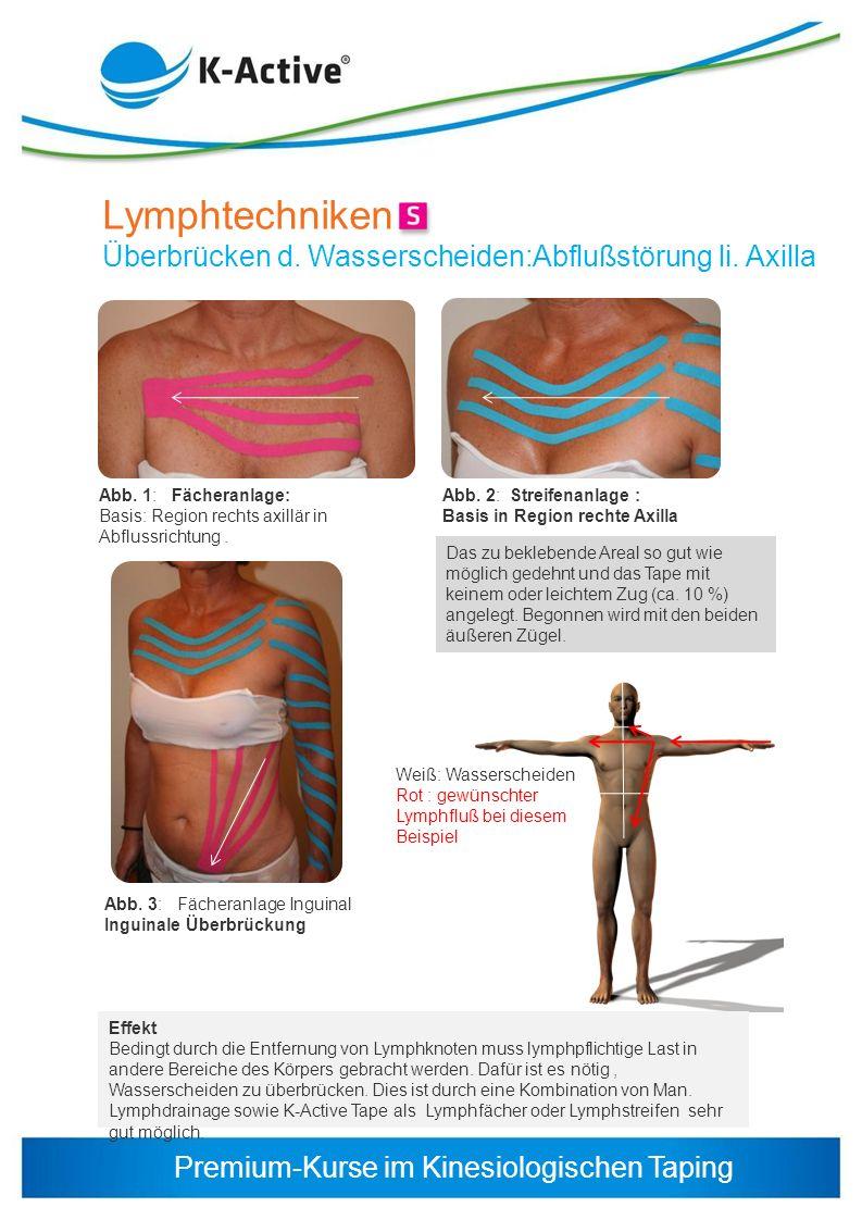 Lymphtechniken Überbrücken d. Wasserscheiden:Abflußstörung li. Axilla
