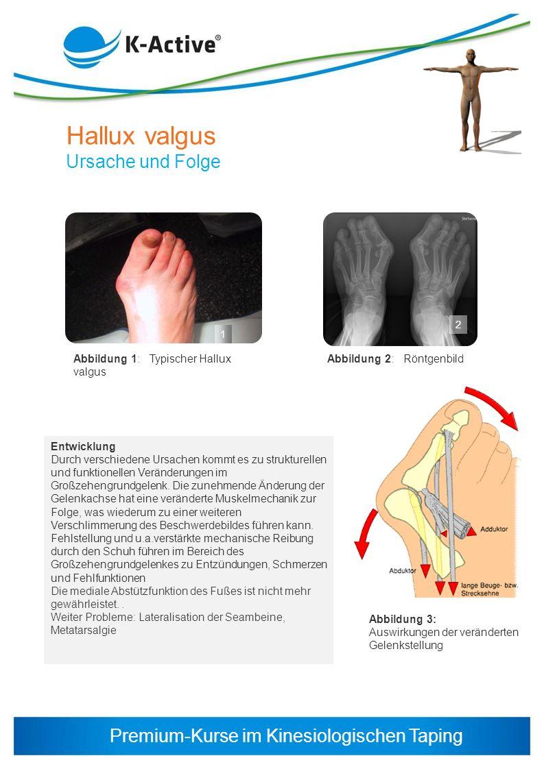 Hallux valgus Ursache und Folge Abbildung 1: Typischer Hallux valgus