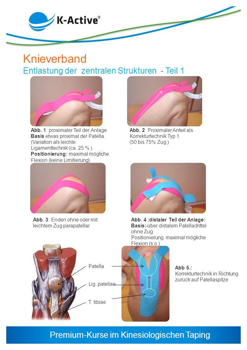 Knieverband Entlastung der zentralen Strukturen - Teil 1