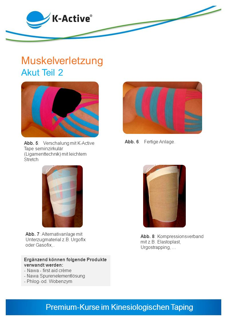 Muskelverletzung Akut Teil 2 Abb. 6: Fertige Anlage.