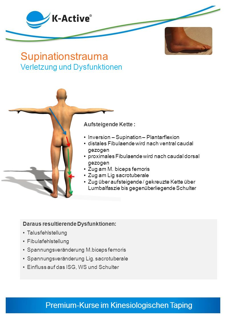 Supinationstrauma Verletzung und Dysfunktionen Aufsteigende Kette :