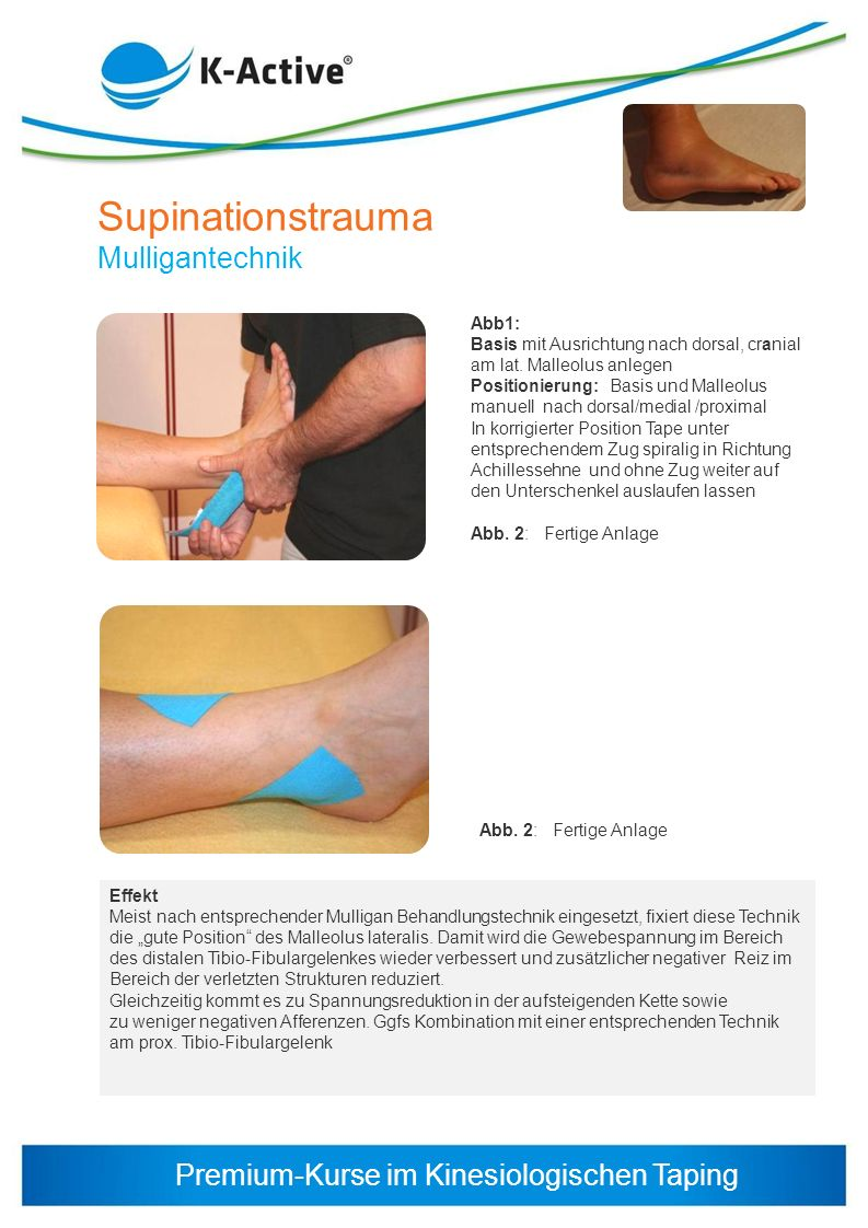 Supinationstrauma Mulligantechnik Abb1: