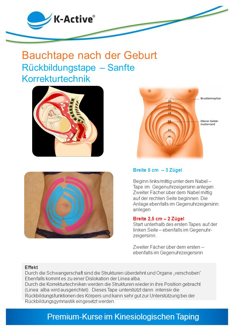 Bauchtape nach der Geburt