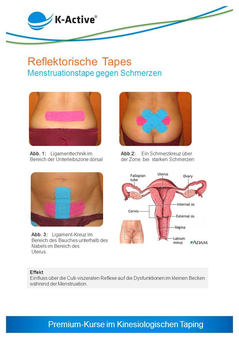 Reflektorische Tapes Menstruationstape gegen Schmerzen