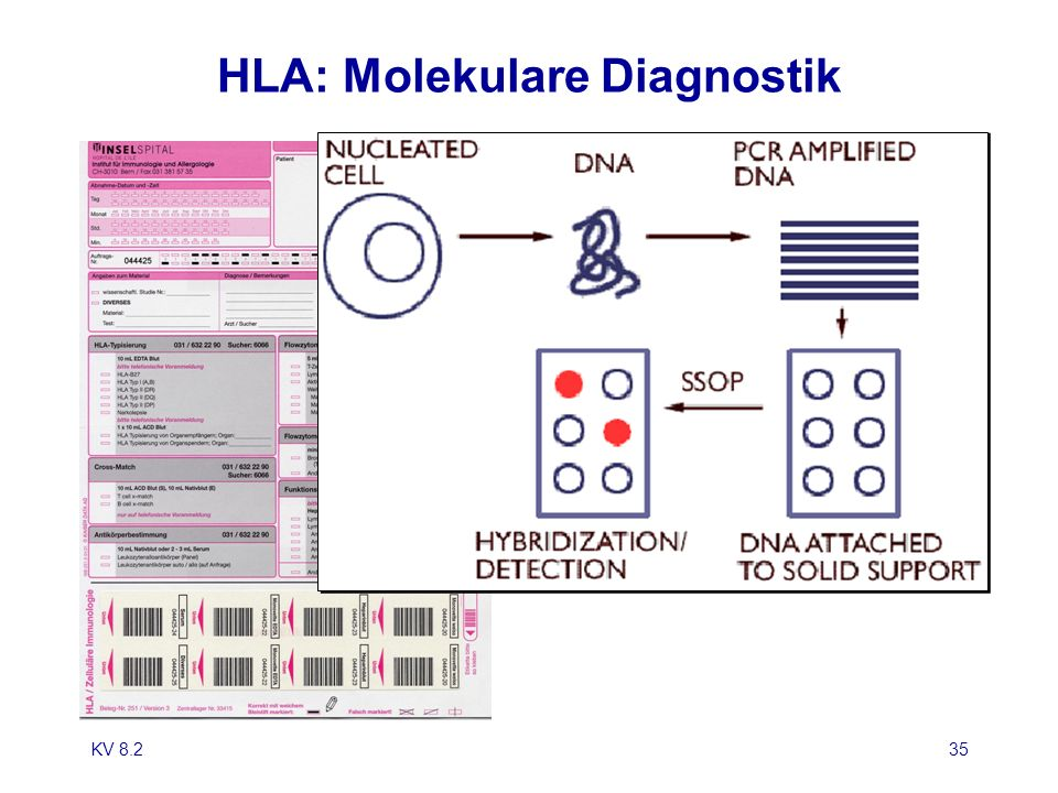 HLA: Molekulare Diagnostik
