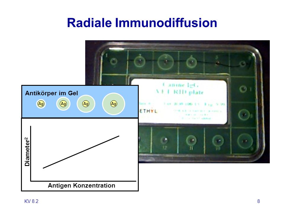 Radiale Immunodiffusion