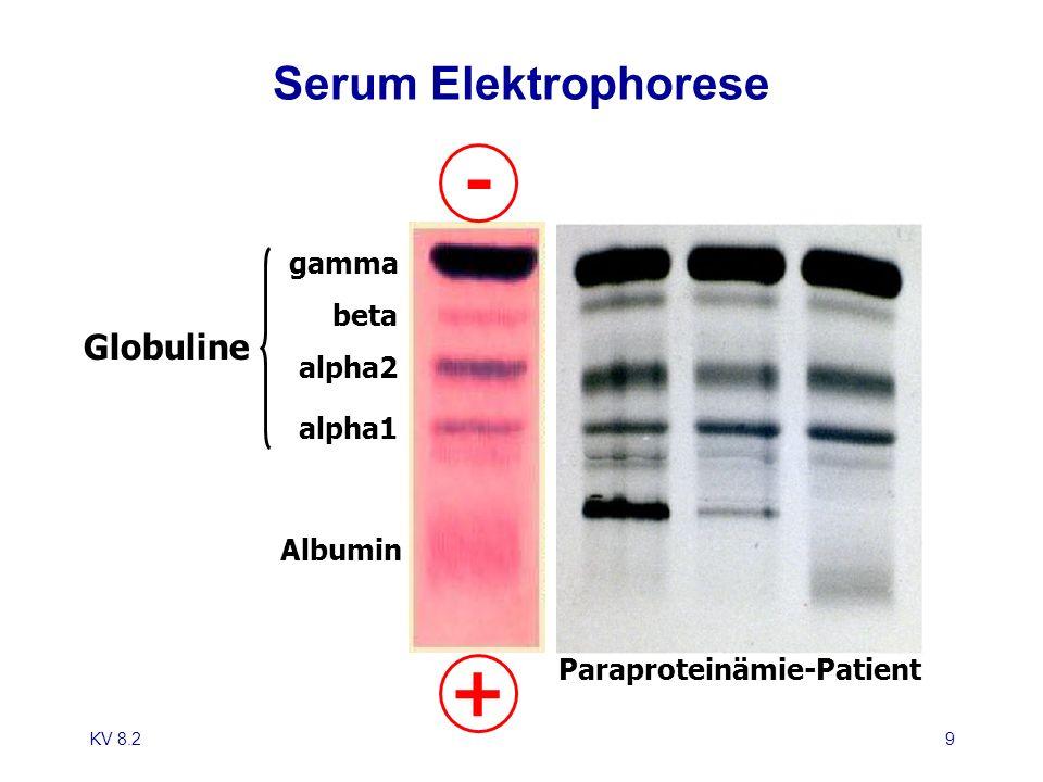 - + Serum Elektrophorese Globuline gamma beta alpha2 alpha1 Albumin