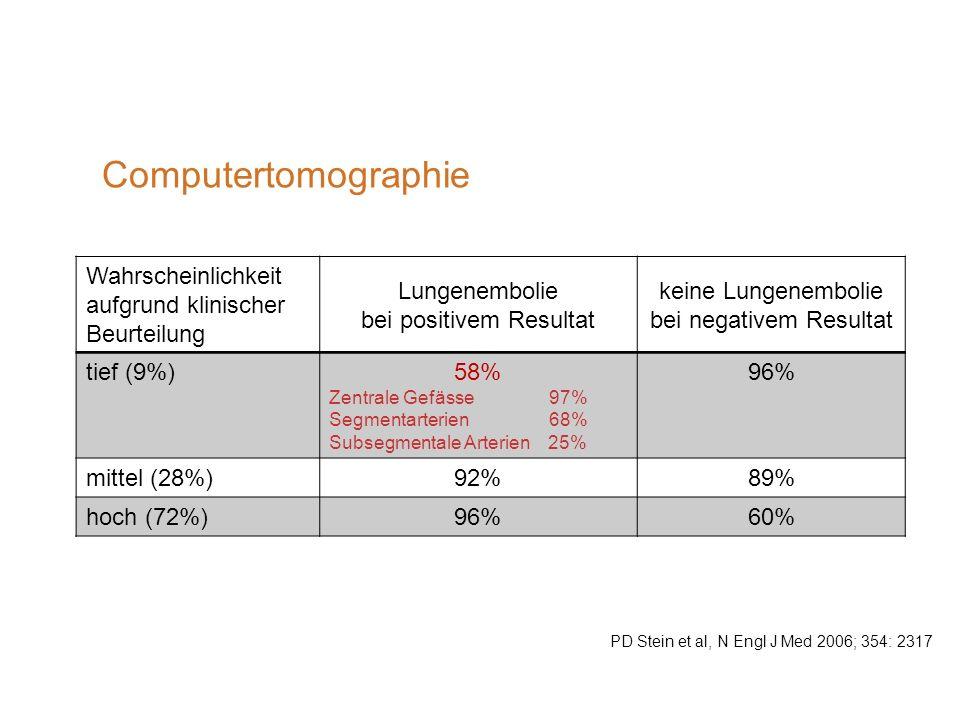 Computertomographie Wahrscheinlichkeit aufgrund klinischer Beurteilung