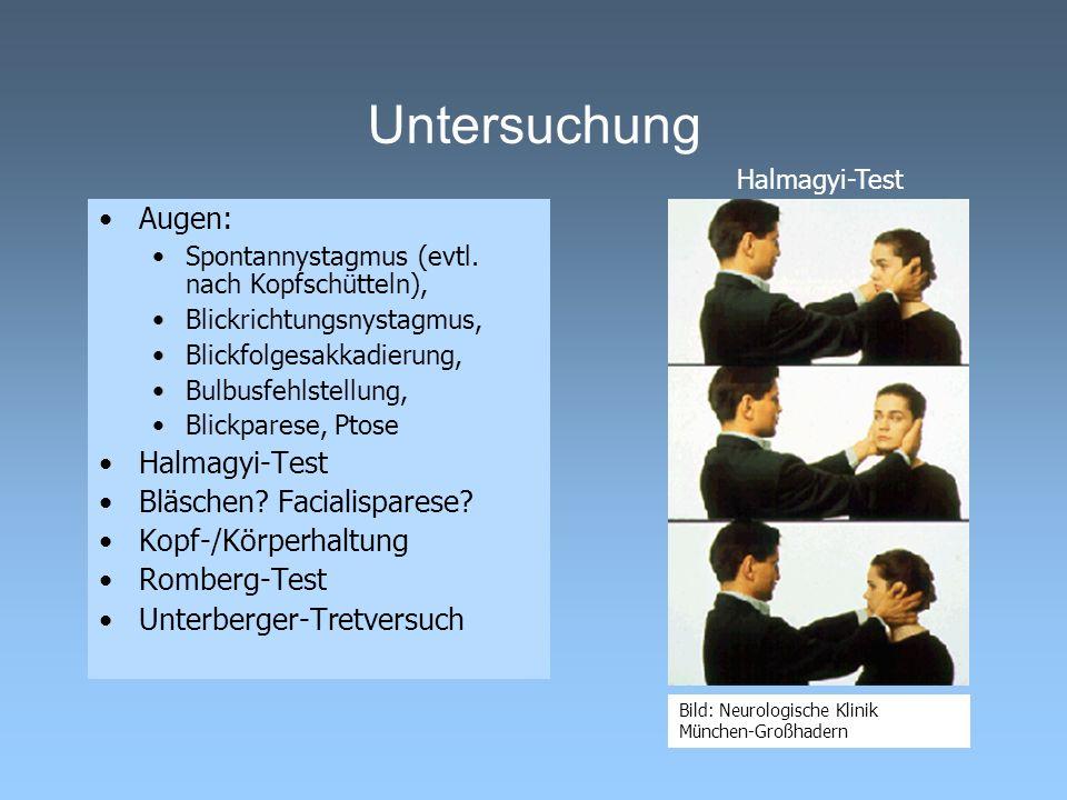Untersuchung Augen: Halmagyi-Test Bläschen Facialisparese