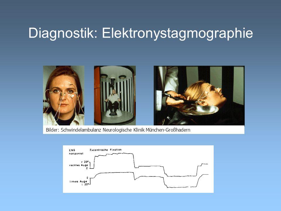 Diagnostik: Elektronystagmographie