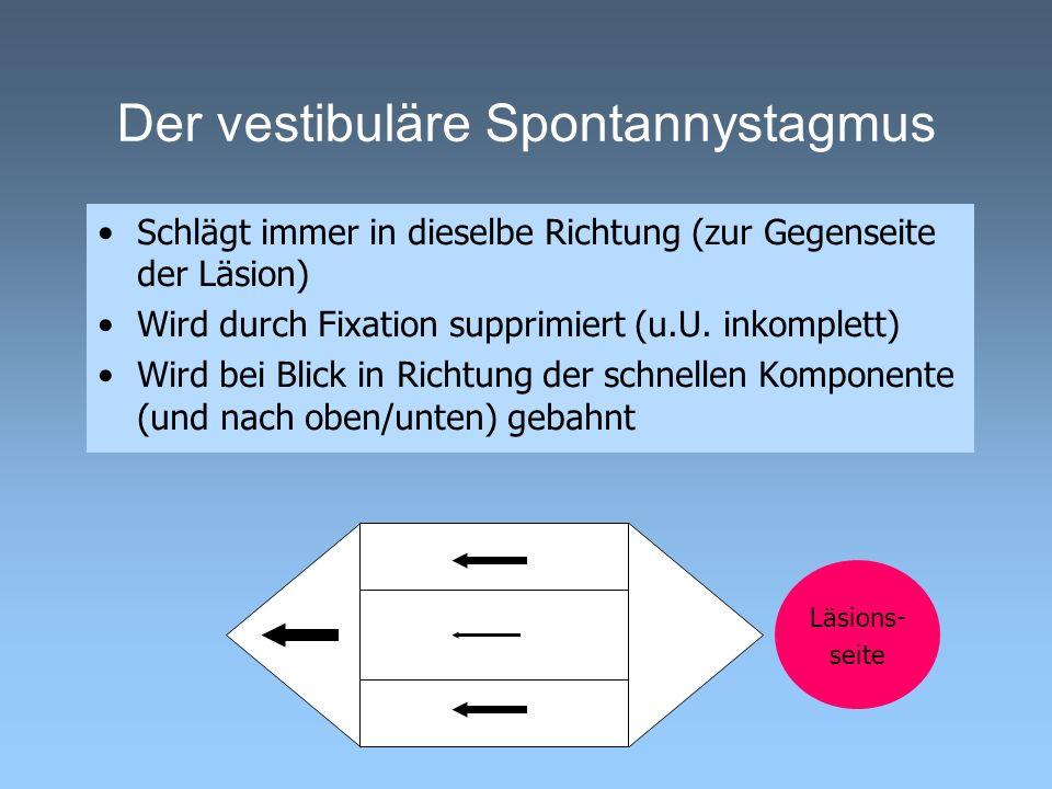 Der vestibuläre Spontannystagmus
