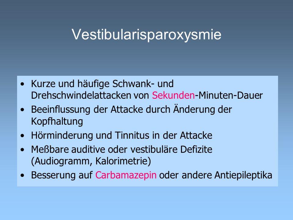 Vestibularisparoxysmie
