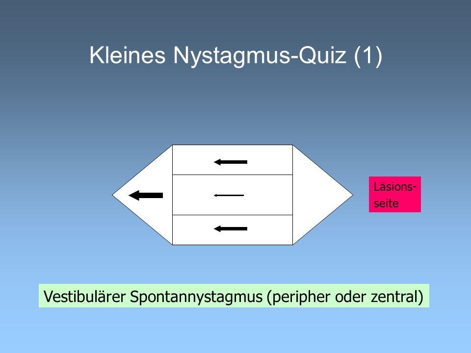 Kleines Nystagmus-Quiz (1)