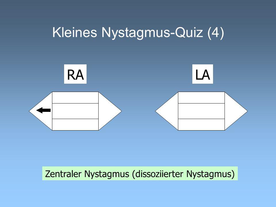 Kleines Nystagmus-Quiz (4)
