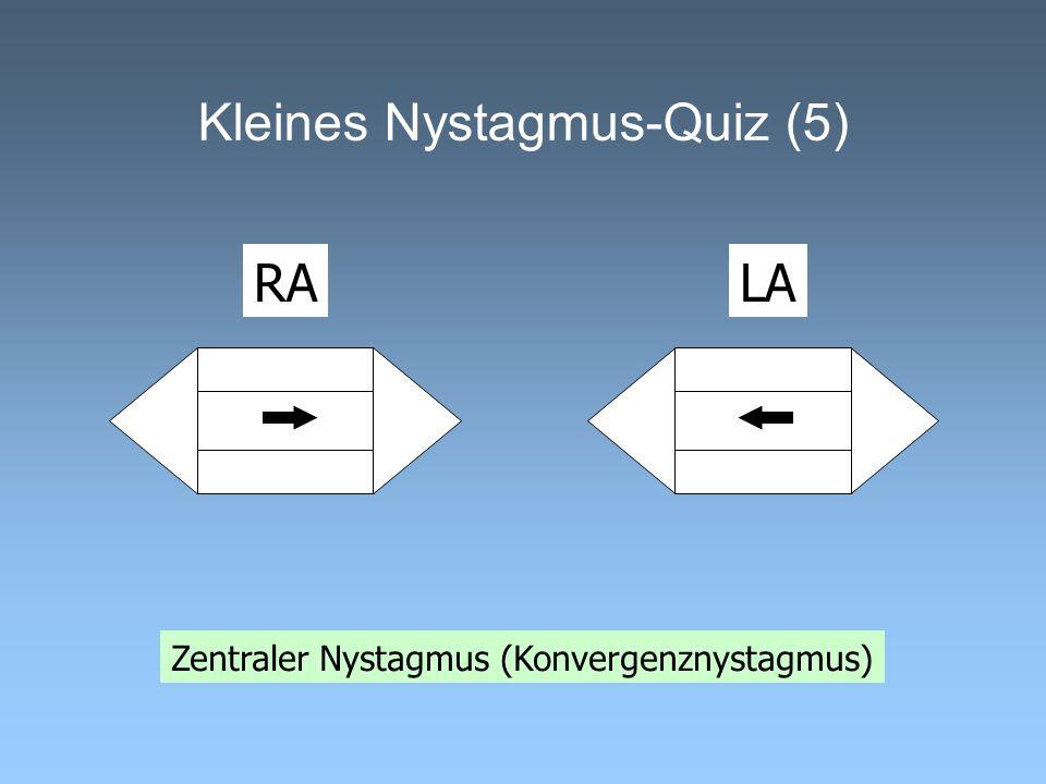 Kleines Nystagmus-Quiz (5)