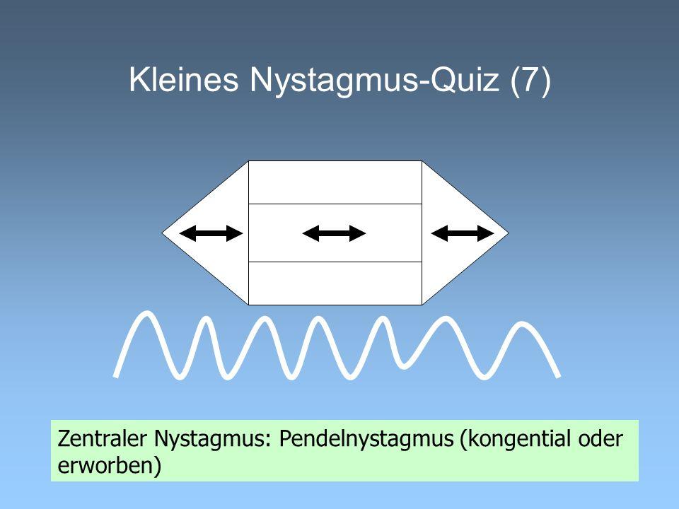 Kleines Nystagmus-Quiz (7)
