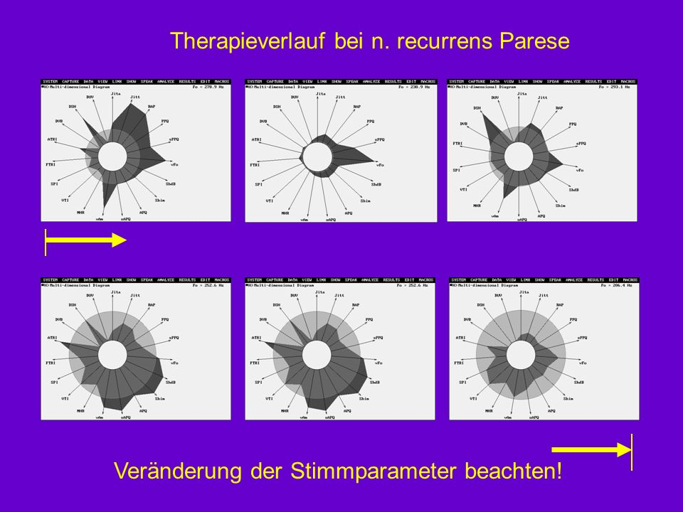 Therapieverlauf bei n. recurrens Parese